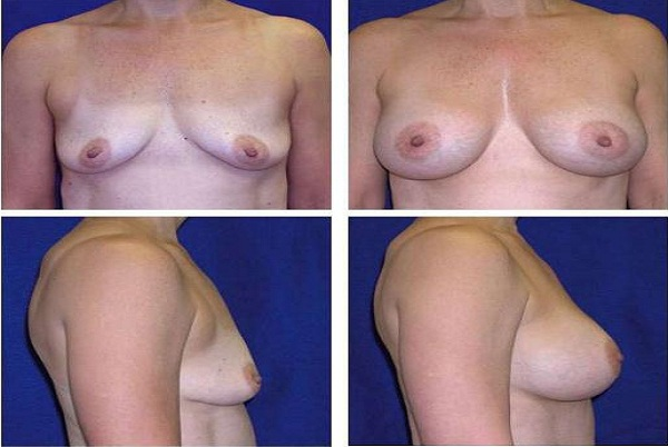 Breast_Augmentation_Case_41