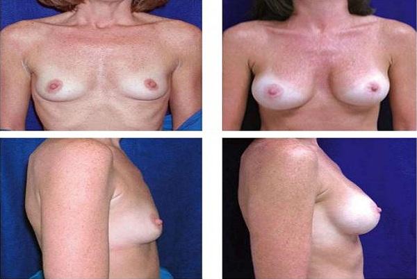 Breast_Augmentation_Case_42