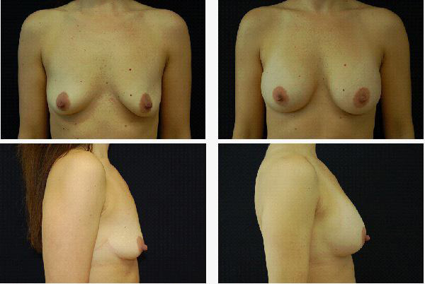 Breast_Augmentation_Case_4247