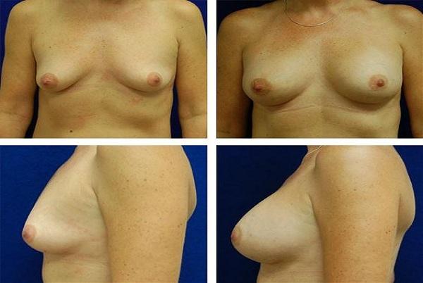 Breast_Augmentation_Case_4265