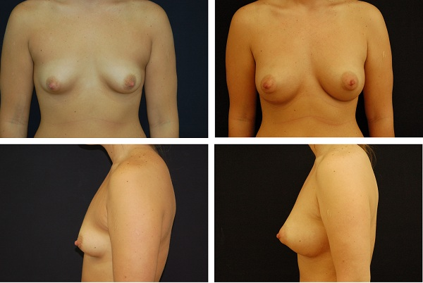 Breast_Augmentation_Case_4284