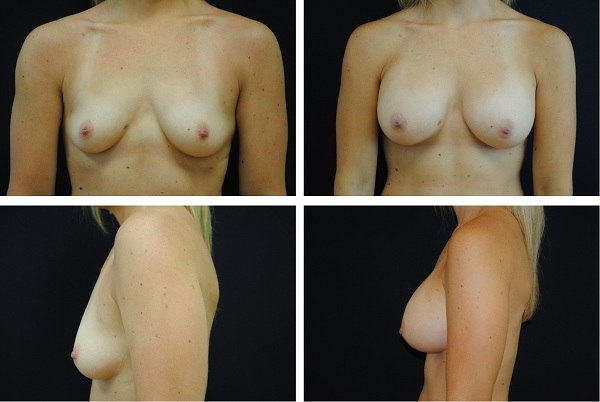 Breast_Augmentation_Case_43021