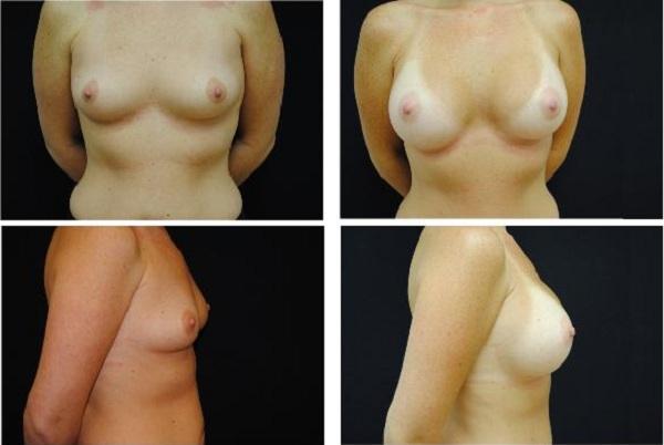 Breast_Augmentation_Case_453