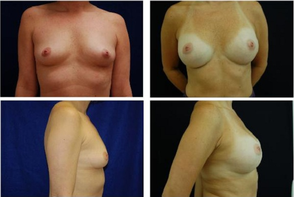 Breast_Augmentation_Case_454