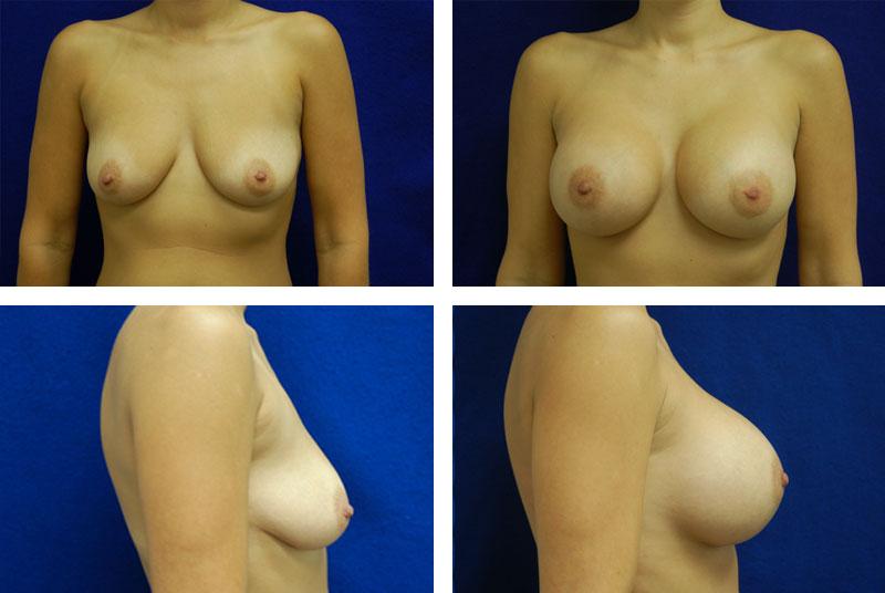 Breast_Augmentation_Case_4899