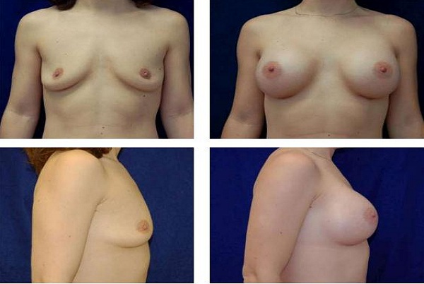 Breast_Augmentation_Case_5