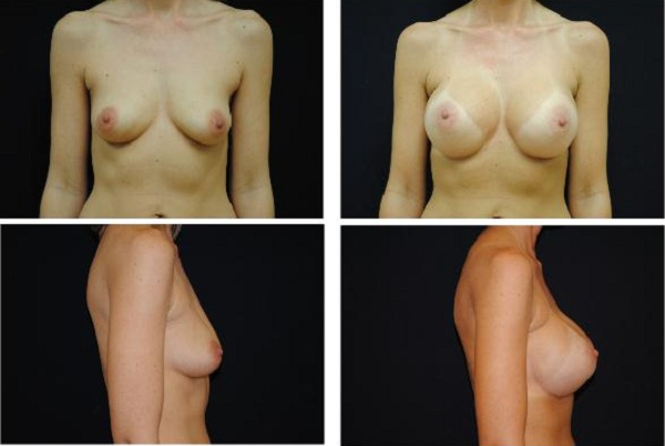 Breast_Augmentation_Case_510
