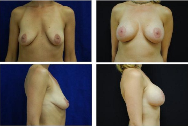 Breast_Augmentation_Case_512