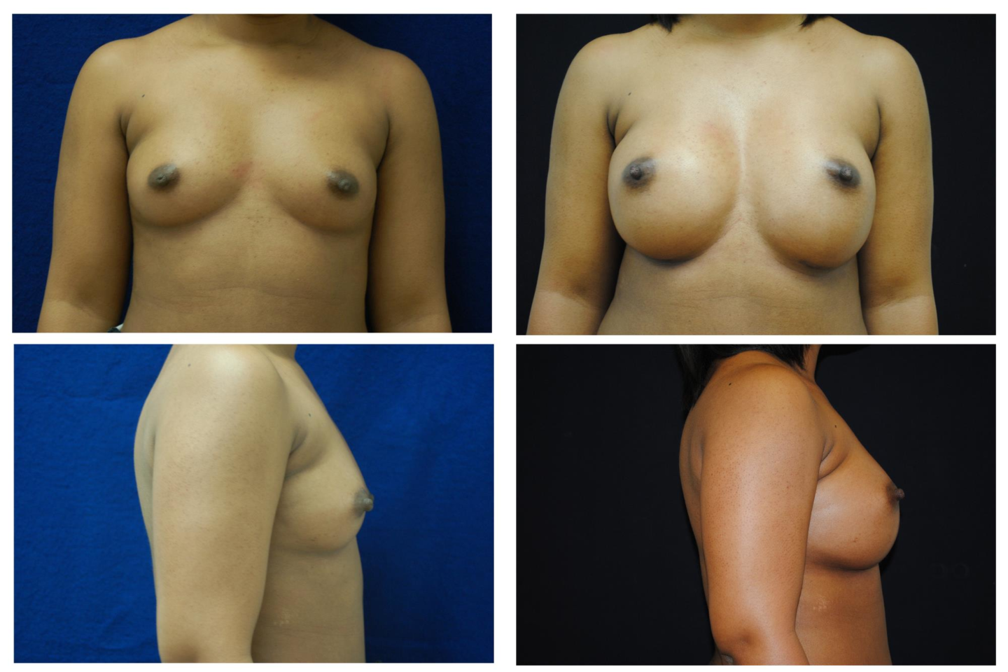 Breast_Augmentation_Case_514