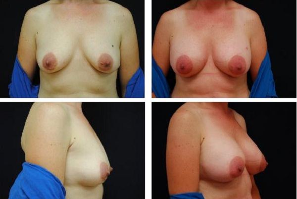 Breast_Augmentation_Case_517