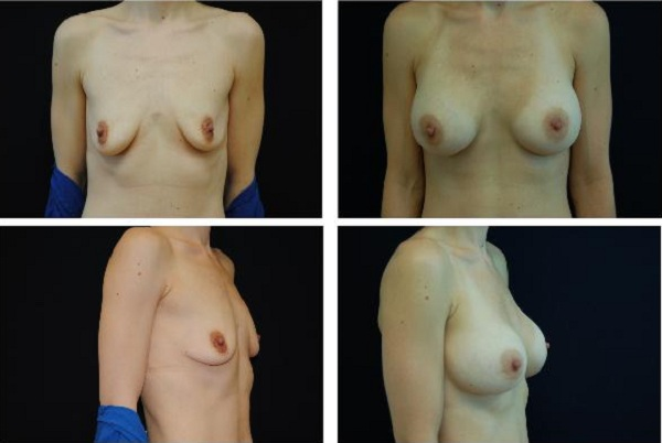 Breast_Augmentation_Case_519