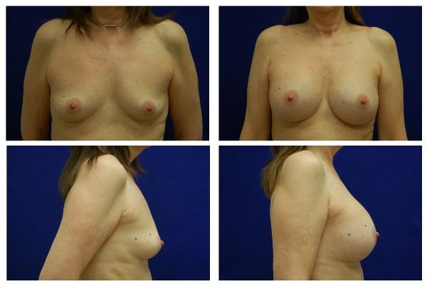 Breast_Augmentation_Case_521