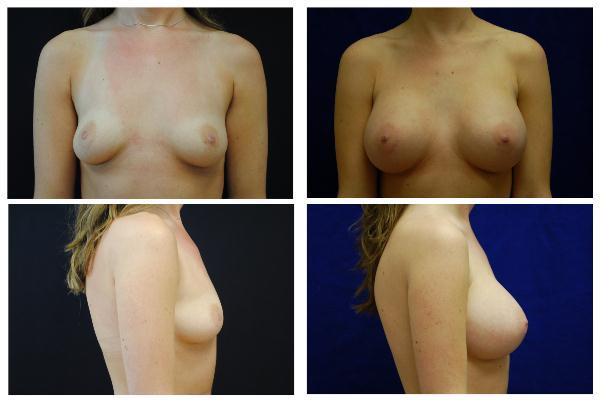 Breast_Augmentation_Case_525