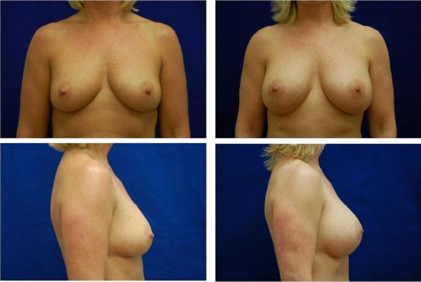 Breast_Augmentation_Case_526