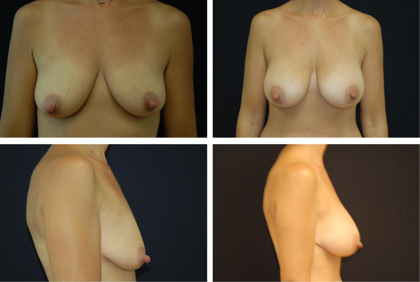 Breast_Augmentation_Case_5298