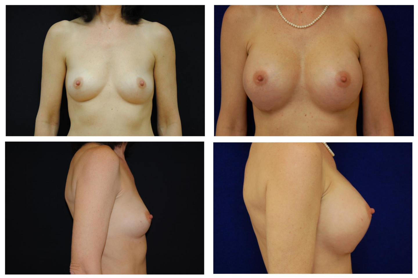 Breast_Augmentation_Case_540