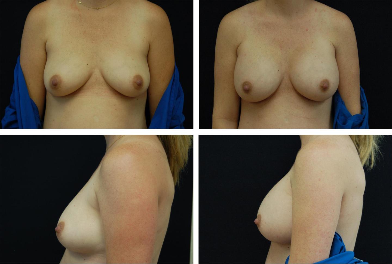 Breast_Augmentation_Case_55041