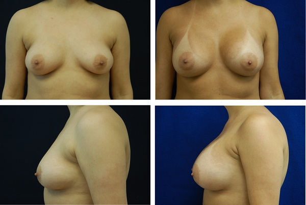 Breast_Augmentation_Case_55311