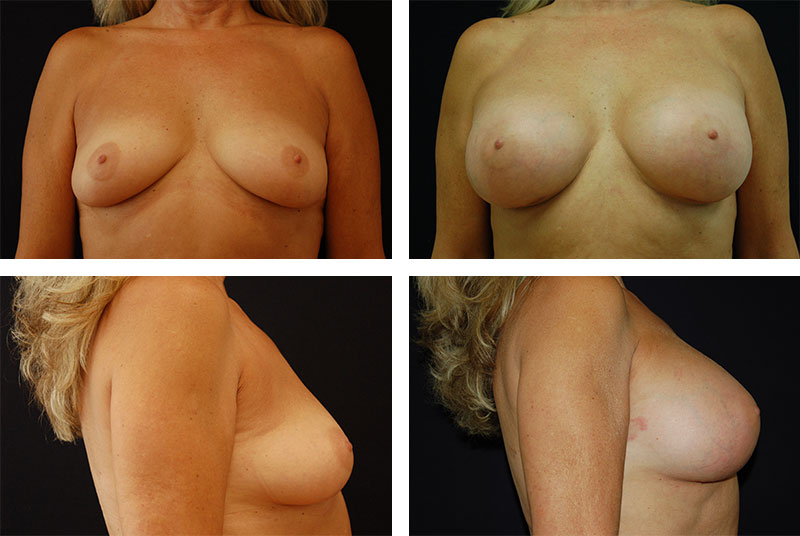 Breast_Augmentation_Case_5669