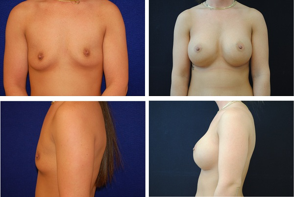 Breast_Augmentation_Case_5686