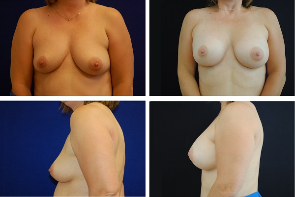 Breast_Augmentation_Case_59031