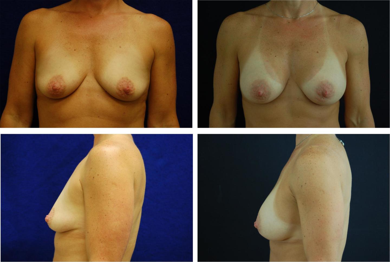 Breast_Augmentation_Case_61131