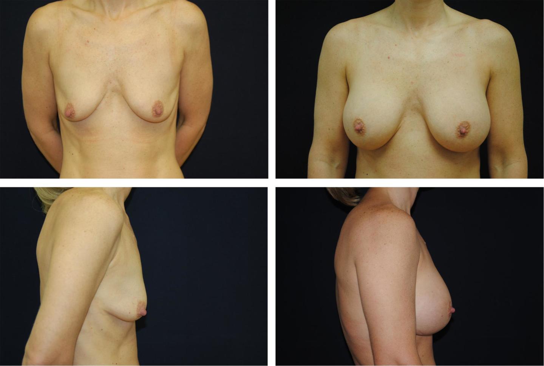 Breast_Augmentation_Case_6355