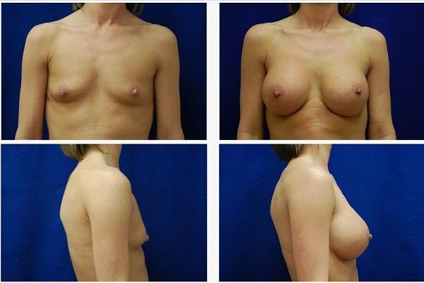 Breast_Augmentation_Case_6421