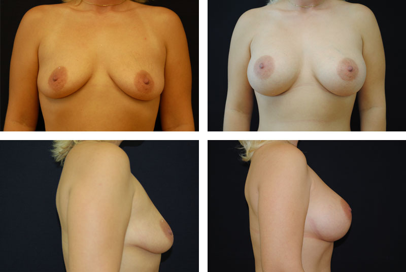Breast_Augmentation_Case_6539