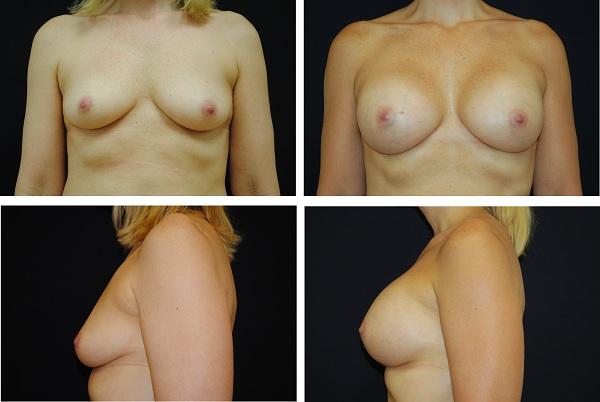 Breast_Augmentation_Case_65521