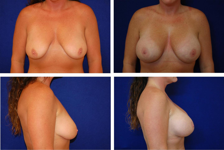 Breast_Augmentation_Case_66331