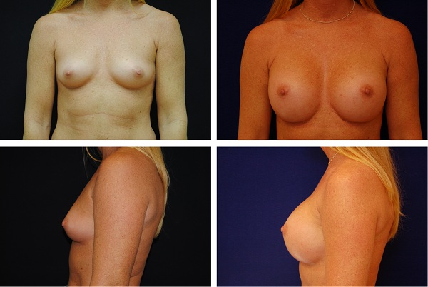 Breast_Augmentation_Case_6695