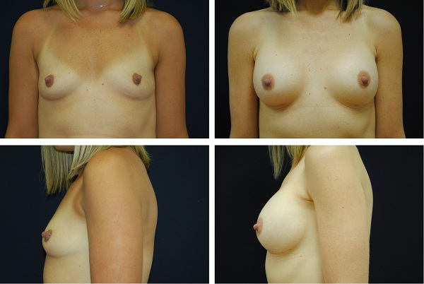 Breast_Augmentation_Case_6839