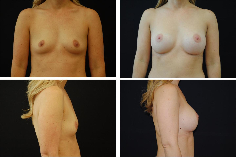 Breast_Augmentation_Case_70621