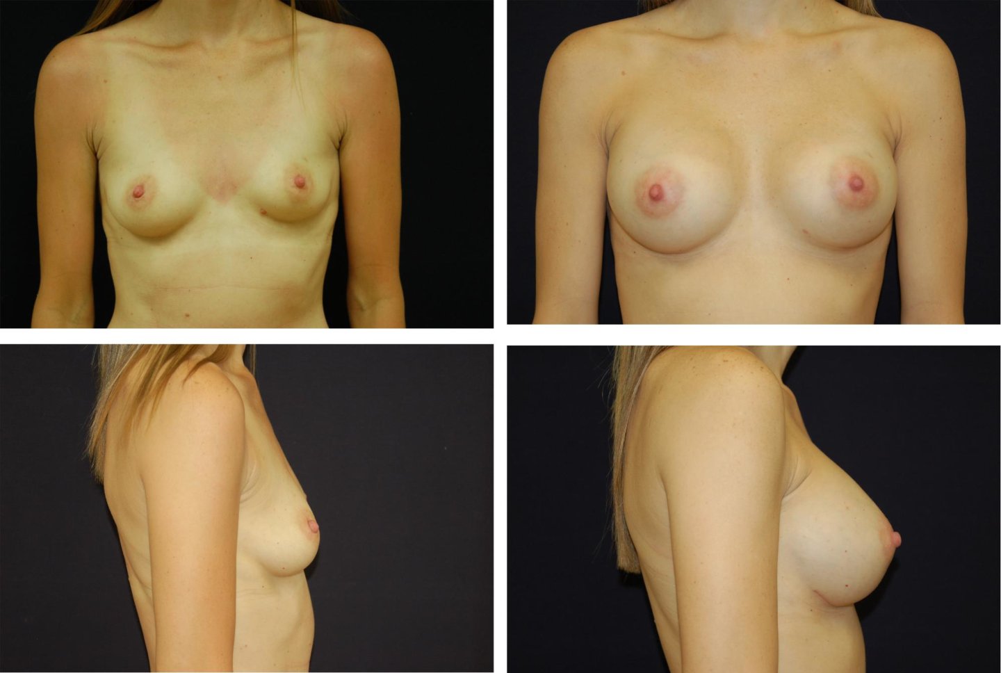 Breast_Augmentation_Case_80131