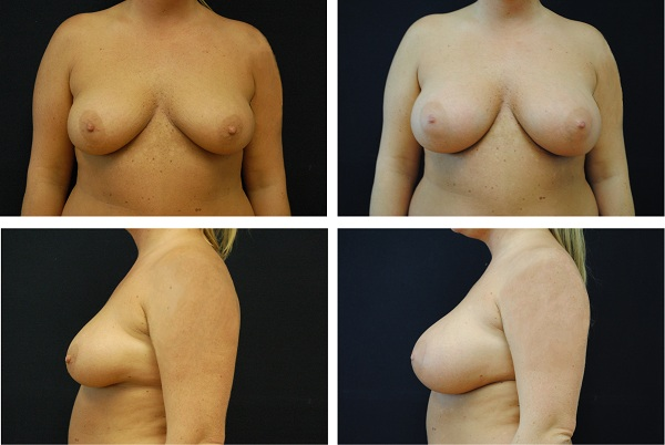 Breast_Augmentation_Case_8035