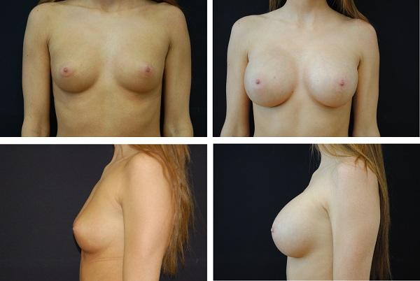 Breast_Augmentation_Case_80721