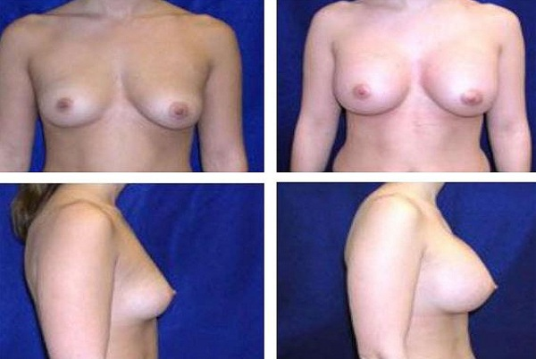 Breast_Augmentation_Case_808