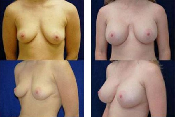Breast_Augmentation_Case_818