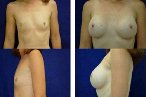 Breast_Augmentation_Case_819