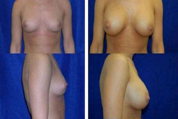 Breast_Augmentation_Case_820