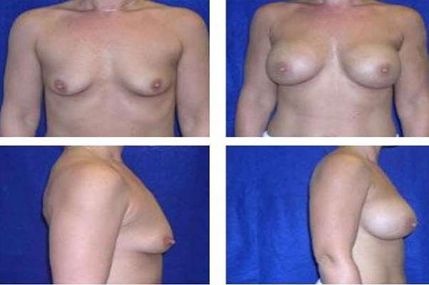 Breast_Augmentation_Case_823