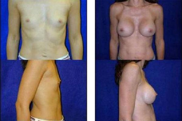 Breast_Augmentation_Case_829