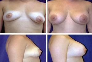 Breast_Augmentation_Case_844