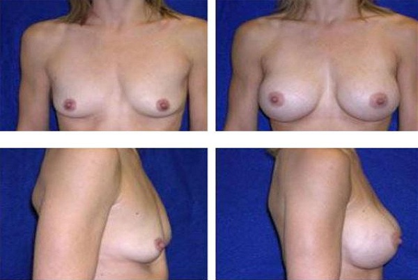 Breast_Augmentation_Case_845