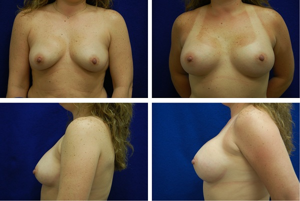 Breast_Augmentation_Case_85411