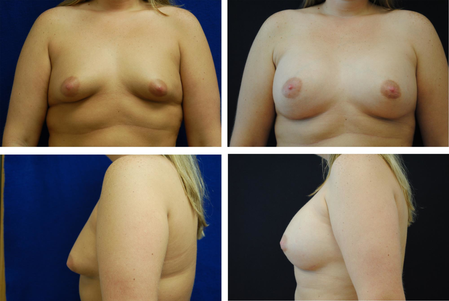 Breast_Augmentation_Case_85921
