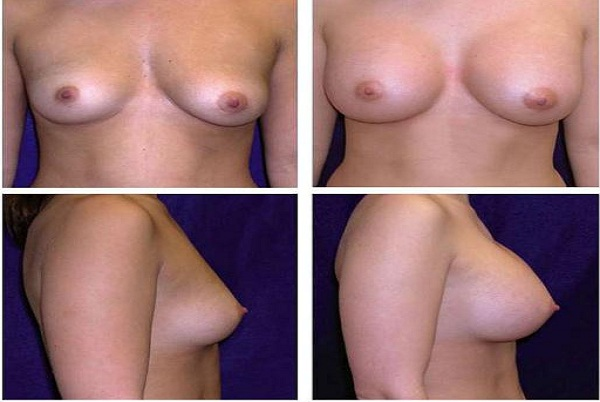 Breast_Augmentation_Case_877