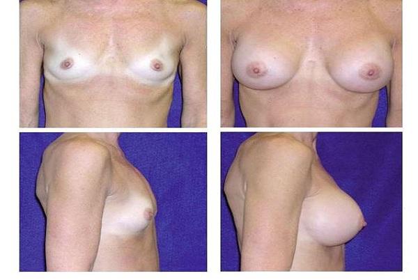 Breast_Augmentation_Case_878
