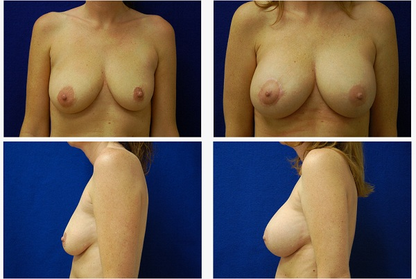 Breast_Augmentation_Case_8843
